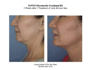 INFINI 2 weeks after treatment (Dr. Phans results) copy