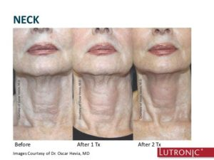 INFINI- neck before and after