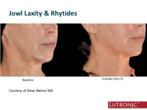 INFINI- neck & jowls before and after